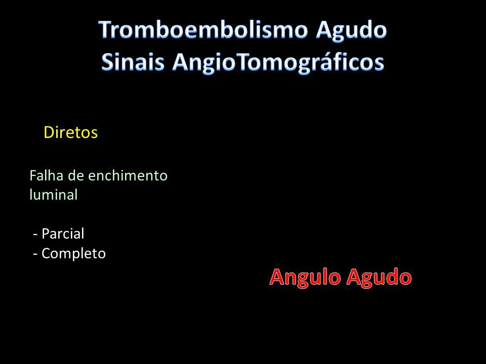 Tromboembolismo Agudo Sinais AngioTomográficos
