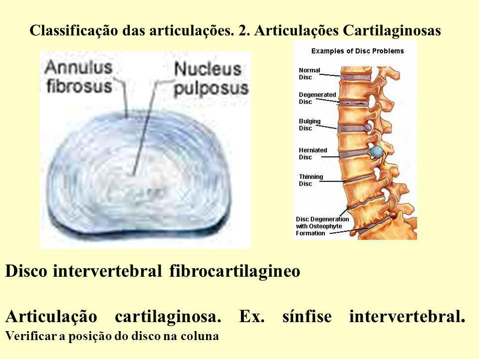 Disco intervertebral fibrocartilagineo