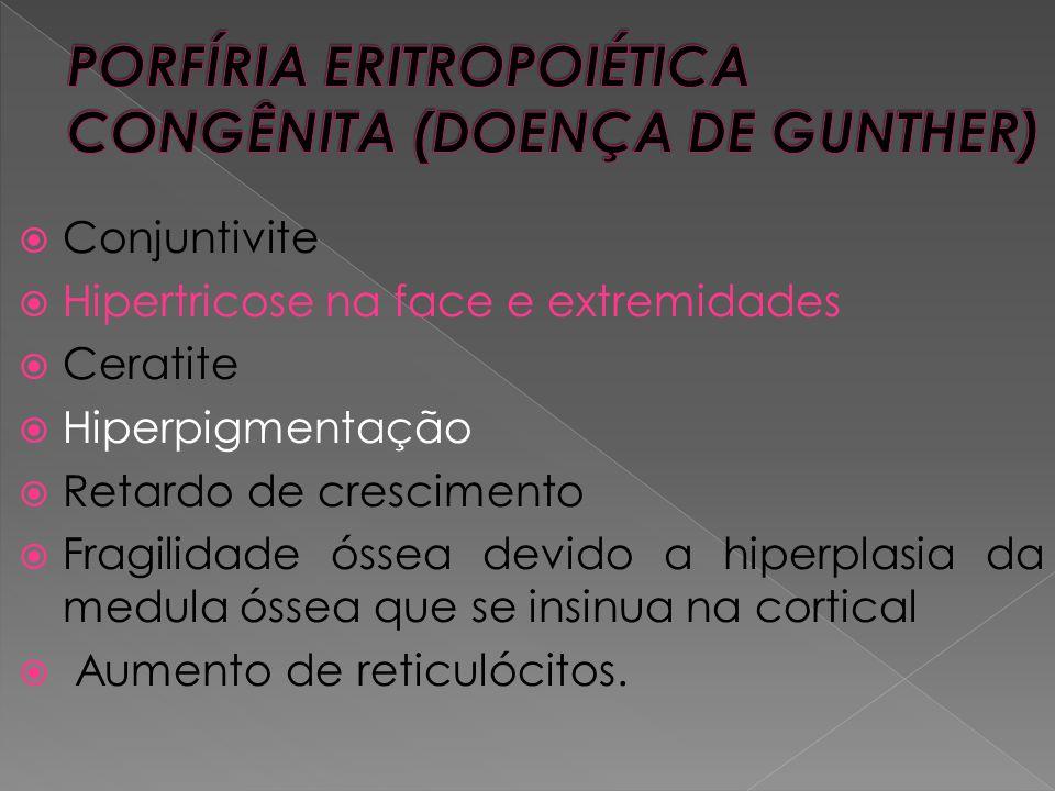 PORFÍRIA ERITROPOIÉTICA CONGÊNITA (DOENÇA DE GUNTHER)