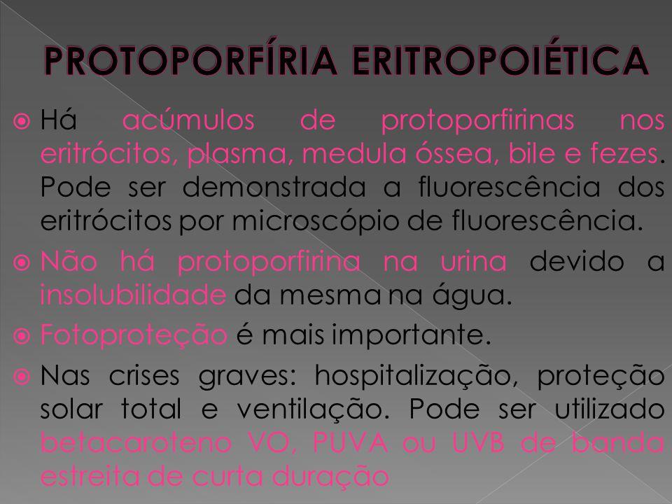 PROTOPORFÍRIA ERITROPOIÉTICA