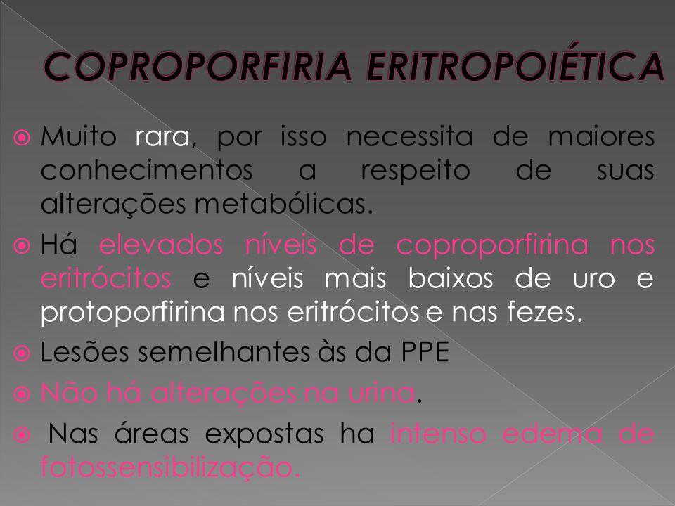 COPROPORFIRIA ERITROPOIÉTICA