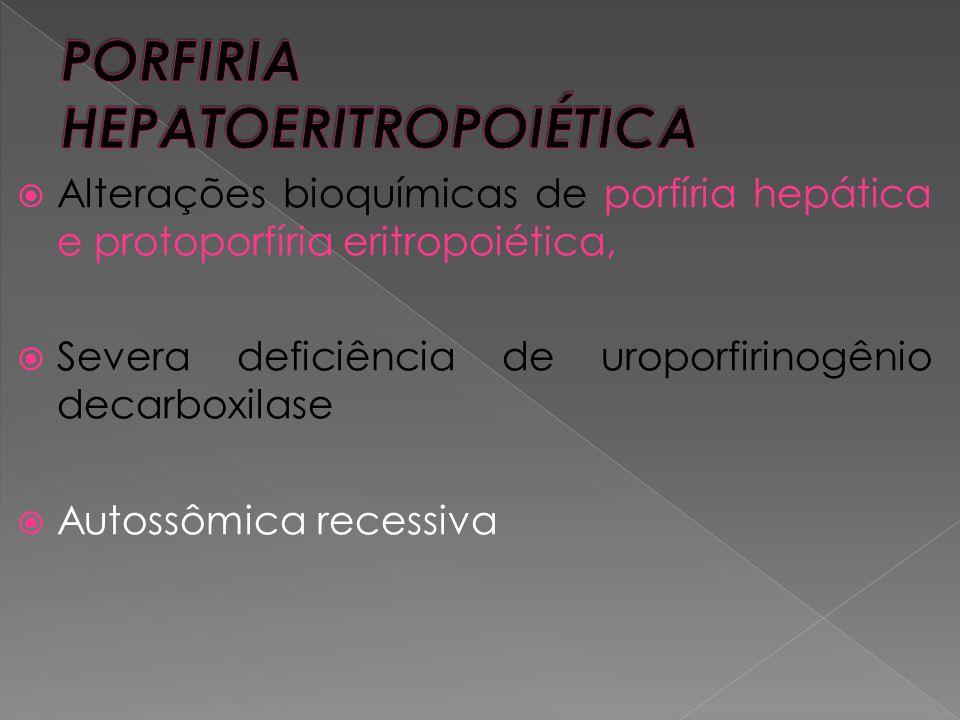 PORFIRIA HEPATOERITROPOIÉTICA