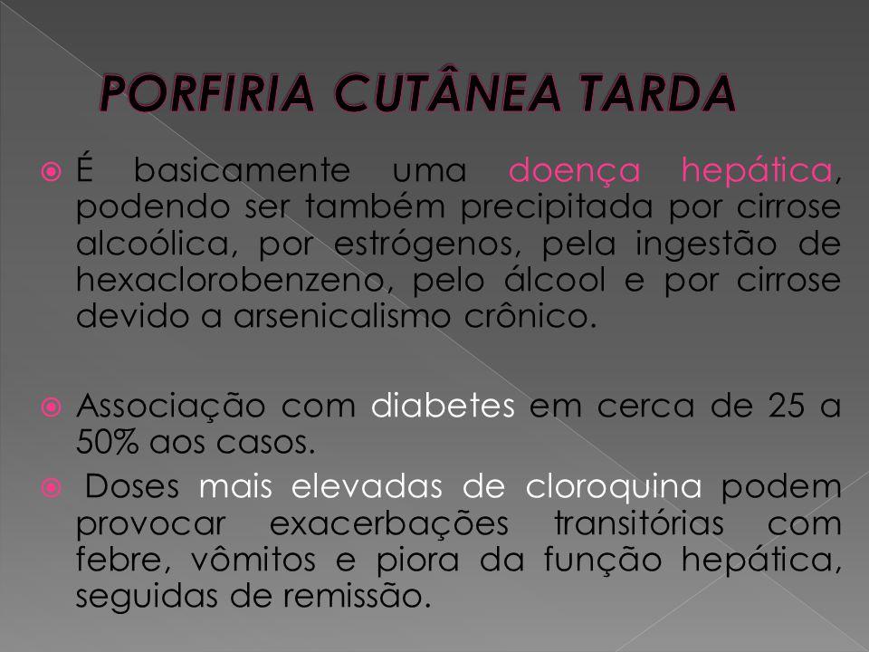 PORFIRIA CUTÂNEA TARDA