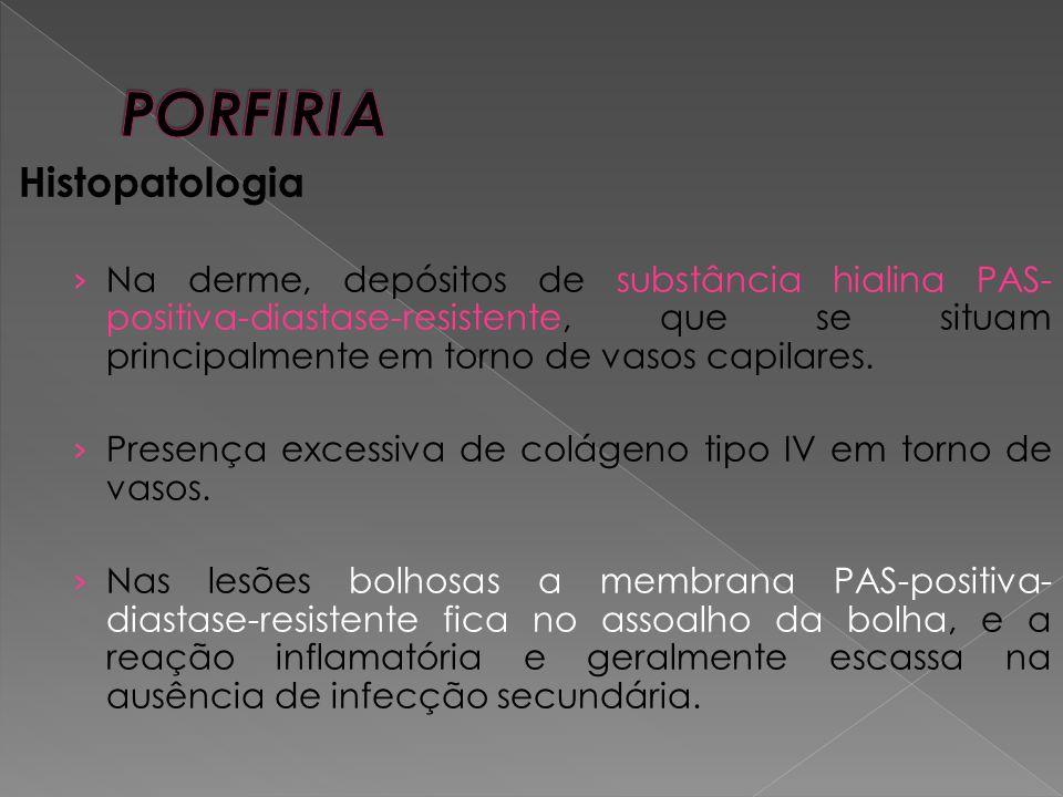 PORFIRIA Histopatologia