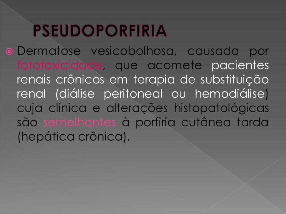PSEUDOPORFIRIA