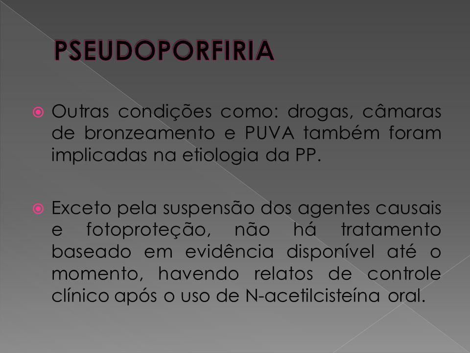 PSEUDOPORFIRIA Outras condições como: drogas, câmaras de bronzeamento e PUVA também foram implicadas na etiologia da PP.