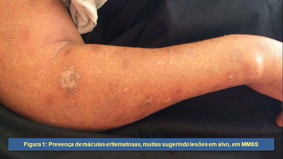 Figura 1: Presença de máculas eritematosas, muitas sugerindo lesões em alvo, em MMSS