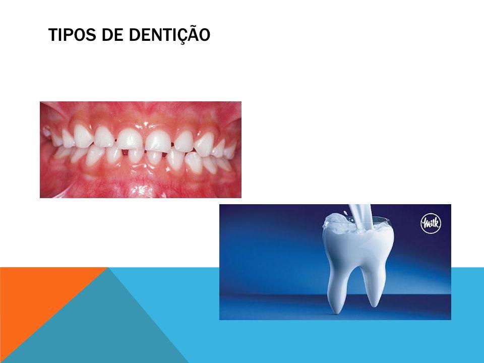 Tipos de dentição