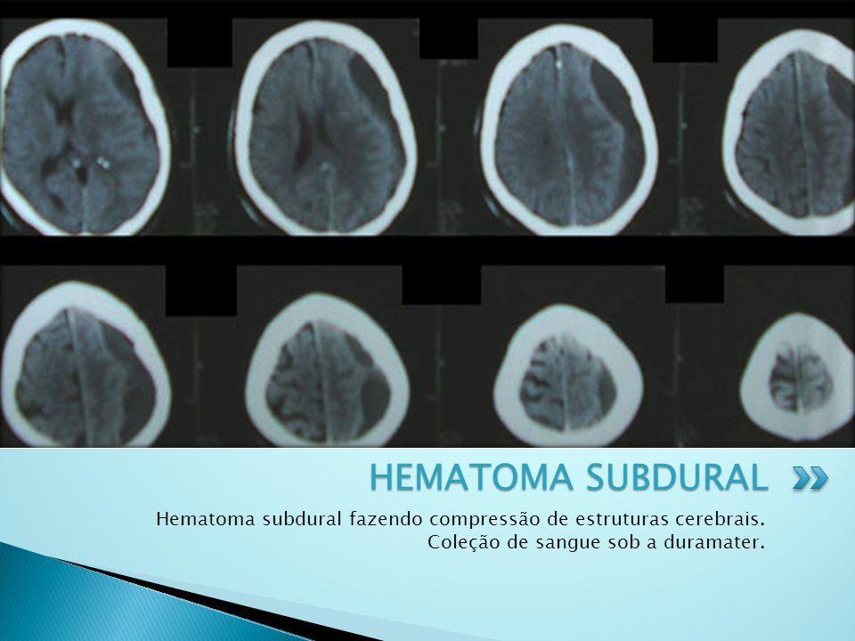 HEMATOMA SUBDURAL Hematoma subdural fazendo compressão de estruturas cerebrais.