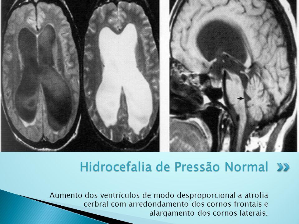 Hidrocefalia de Pressão Normal