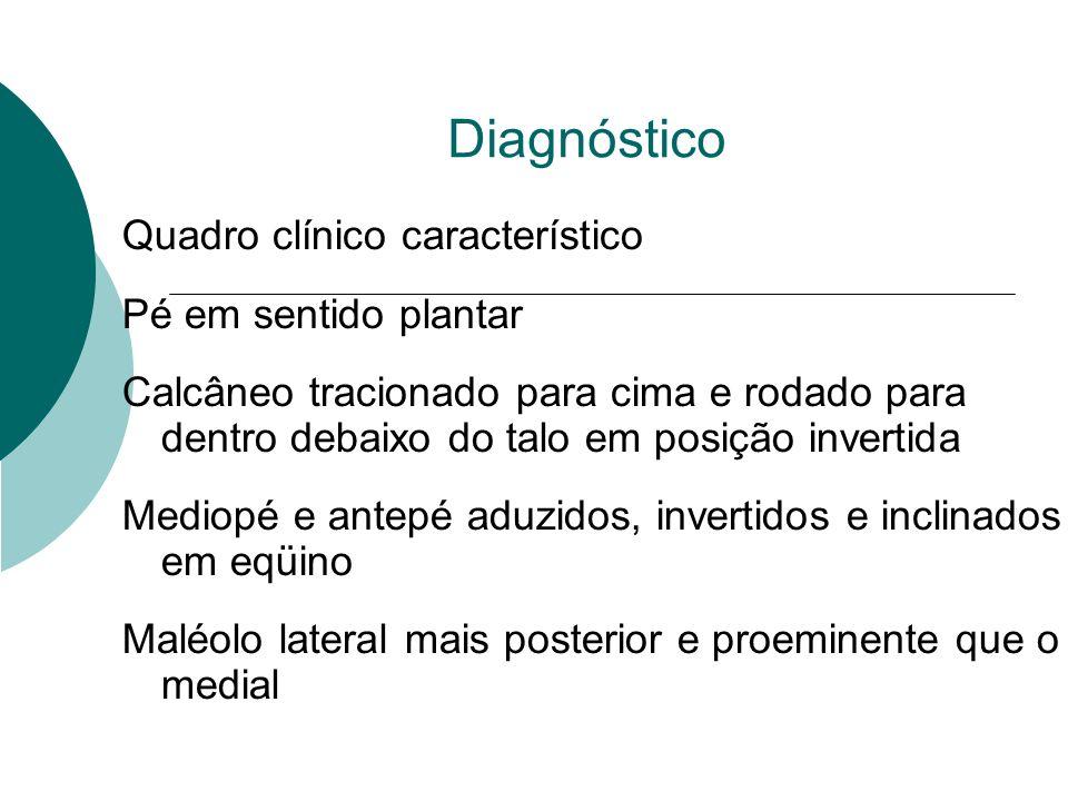 Diagnóstico Quadro clínico característico Pé em sentido plantar