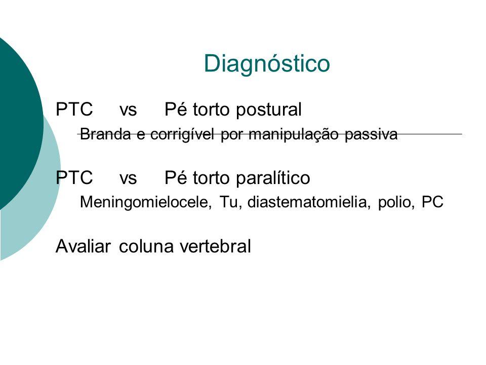 Diagnóstico PTC vs Pé torto postural PTC vs Pé torto paralítico