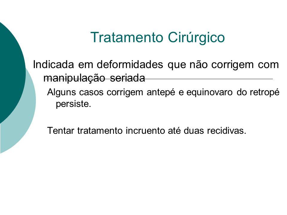 Tratamento Cirúrgico Indicada em deformidades que não corrigem com manipulação seriada.
