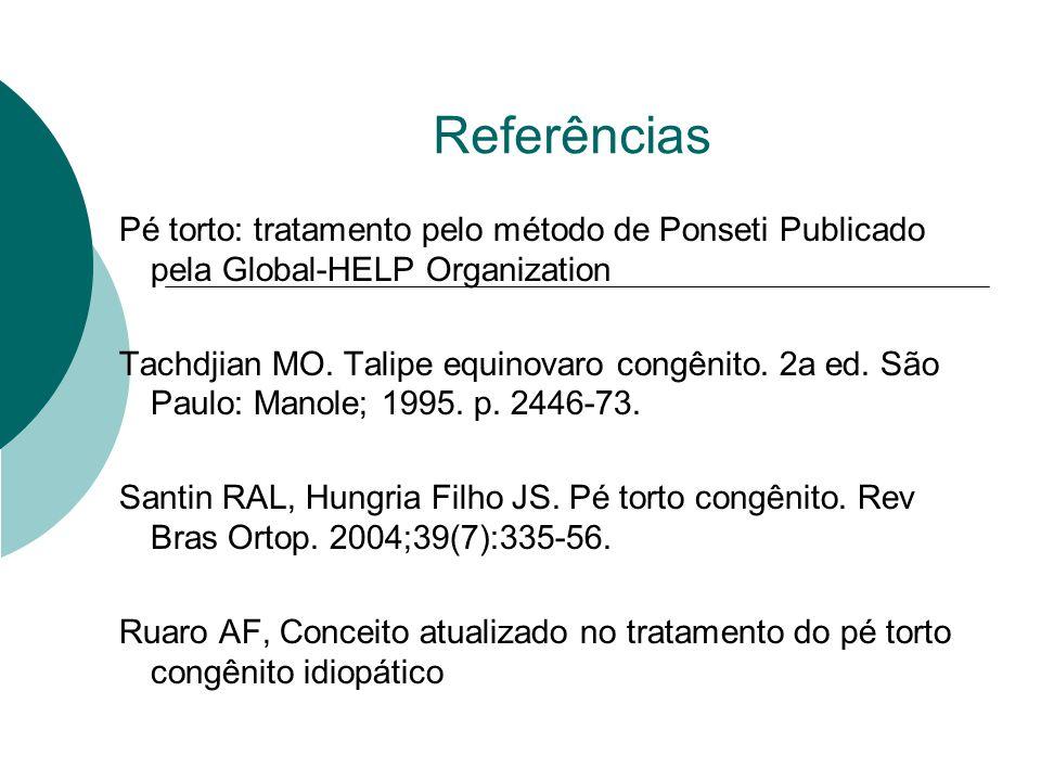 Referências Pé torto: tratamento pelo método de Ponseti Publicado pela Global-HELP Organization.
