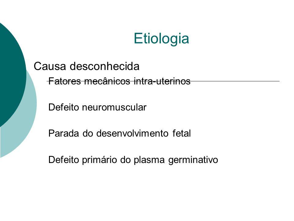 Etiologia Causa desconhecida Fatores mecânicos intra-uterinos
