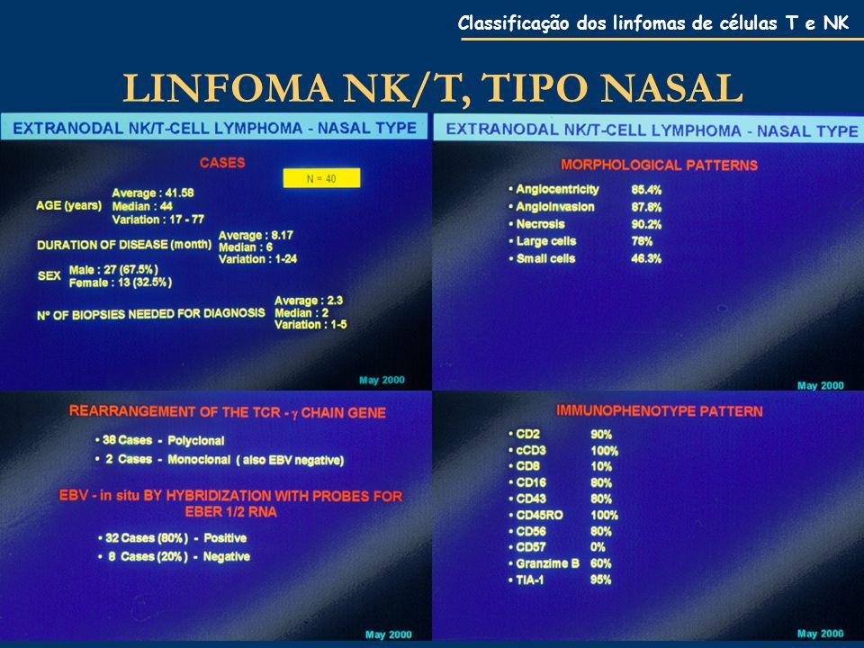 LINFOMA NK/T, TIPO NASAL