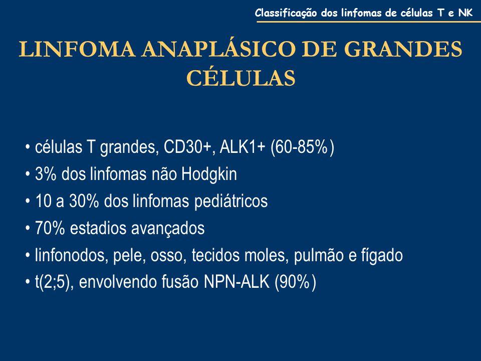 LINFOMA ANAPLÁSICO DE GRANDES CÉLULAS