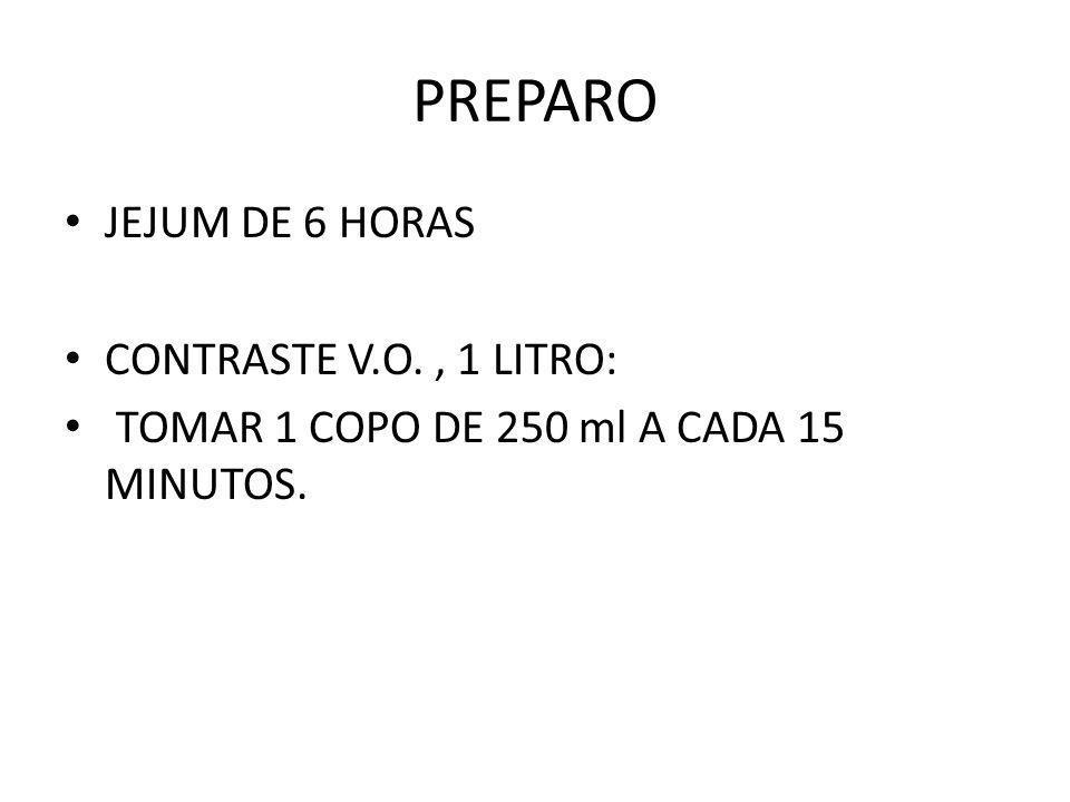 PREPARO JEJUM DE 6 HORAS CONTRASTE V.O. , 1 LITRO: