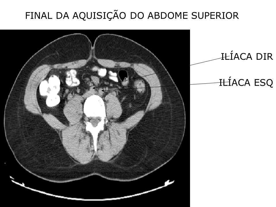 FINAL DA AQUISIÇÃO DO ABDOME SUPERIOR