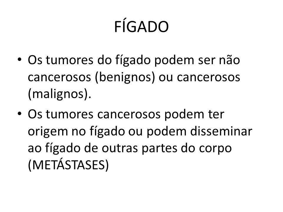 FÍGADO Os tumores do fígado podem ser não cancerosos (benignos) ou cancerosos (malignos).