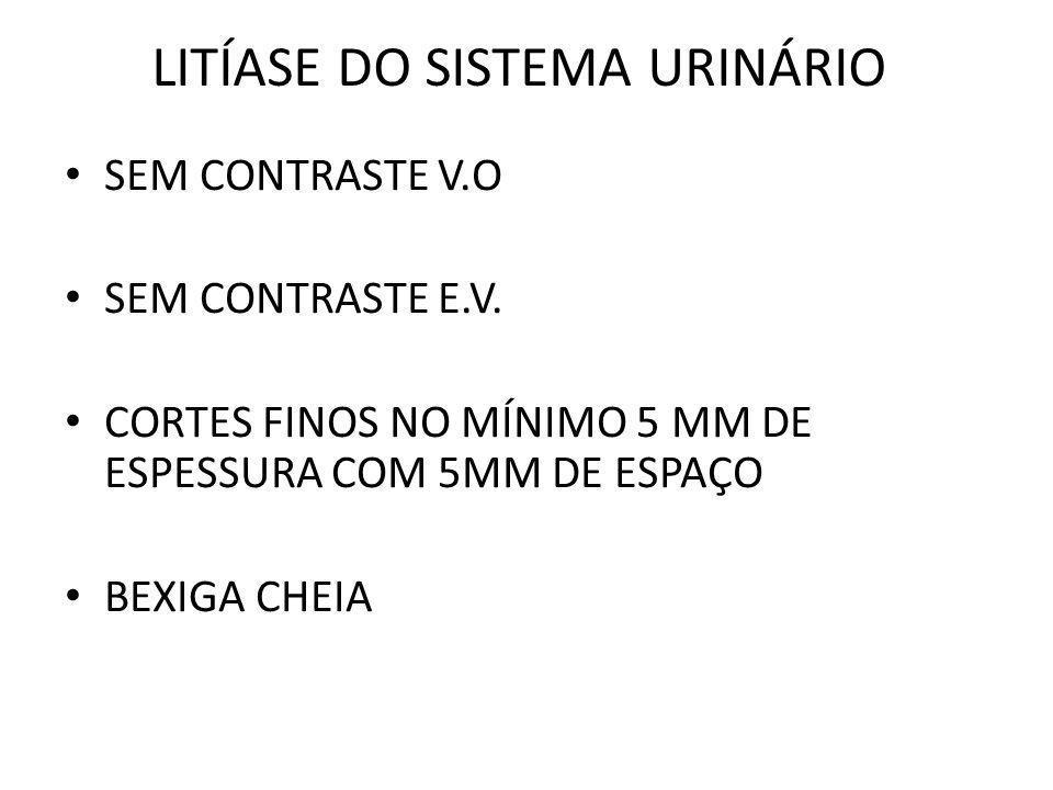 LITÍASE DO SISTEMA URINÁRIO