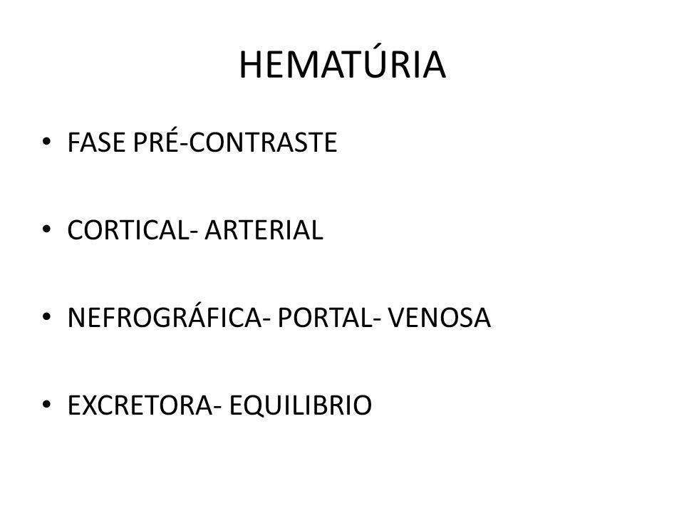 HEMATÚRIA FASE PRÉ-CONTRASTE CORTICAL- ARTERIAL