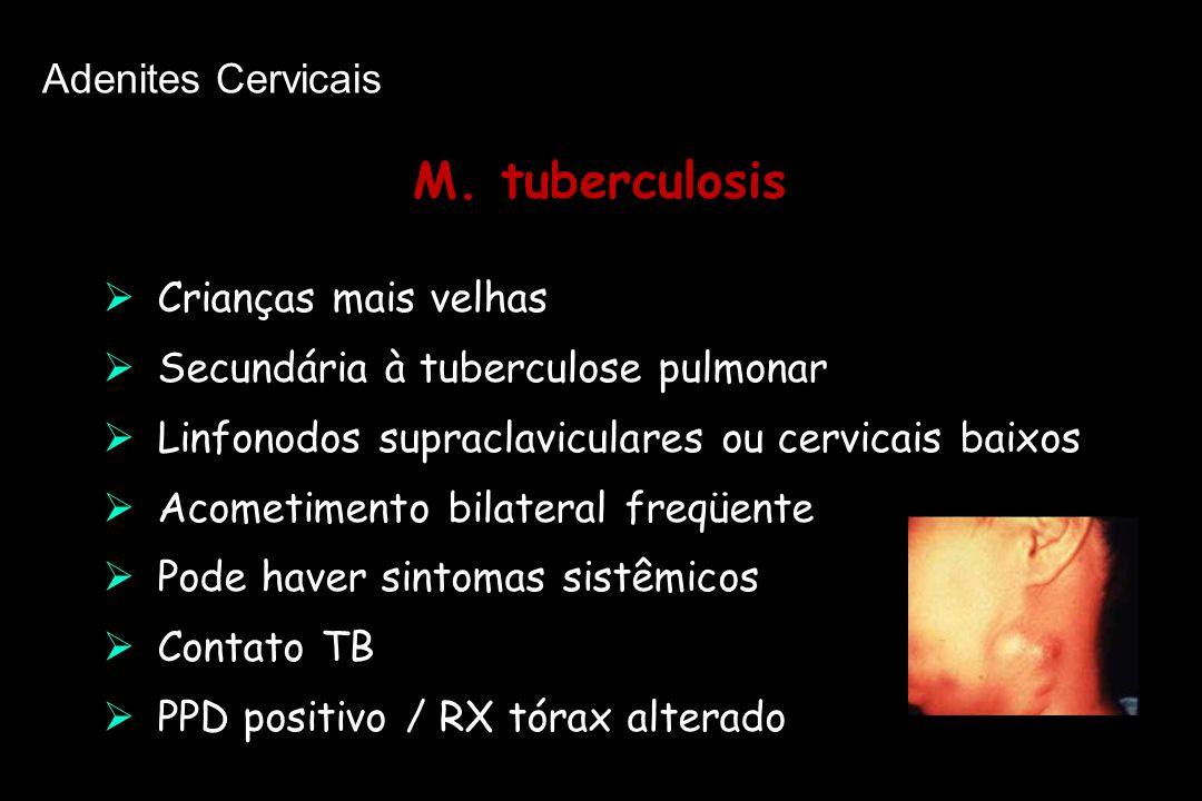 M. tuberculosis Adenites Cervicais Crianças mais velhas