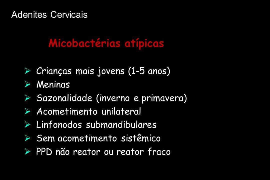 Micobactérias atípicas