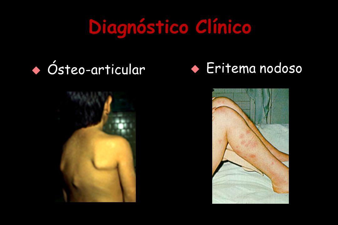 Diagnóstico Clínico Ósteo-articular Eritema nodoso