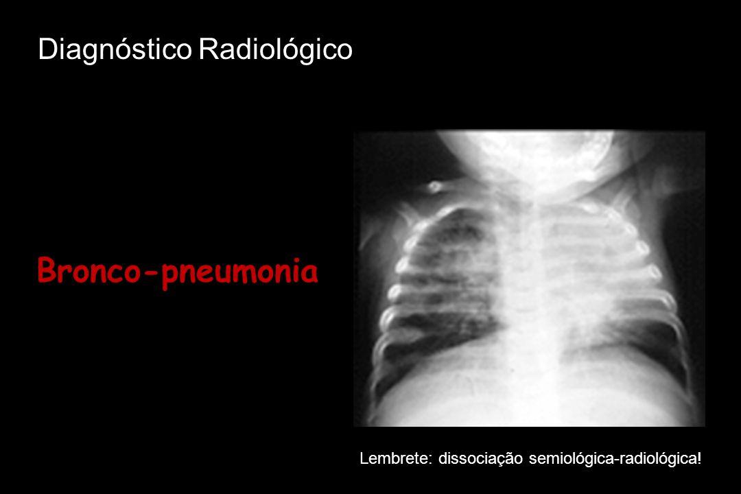 Bronco-pneumonia Diagnóstico Radiológico