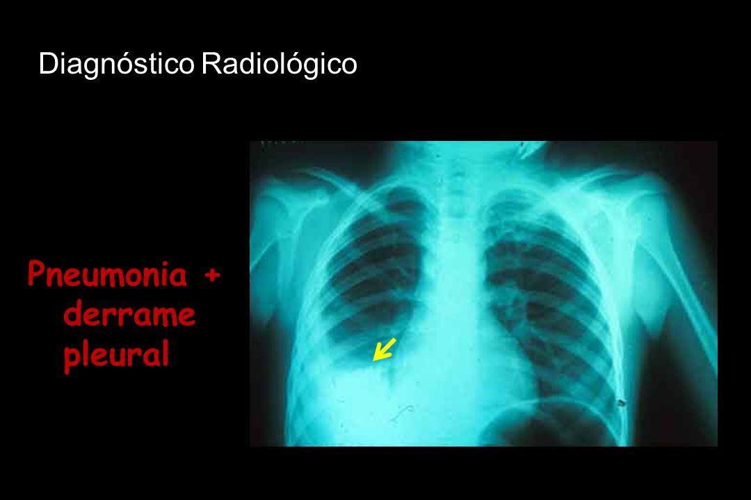 Pneumonia + derrame pleural