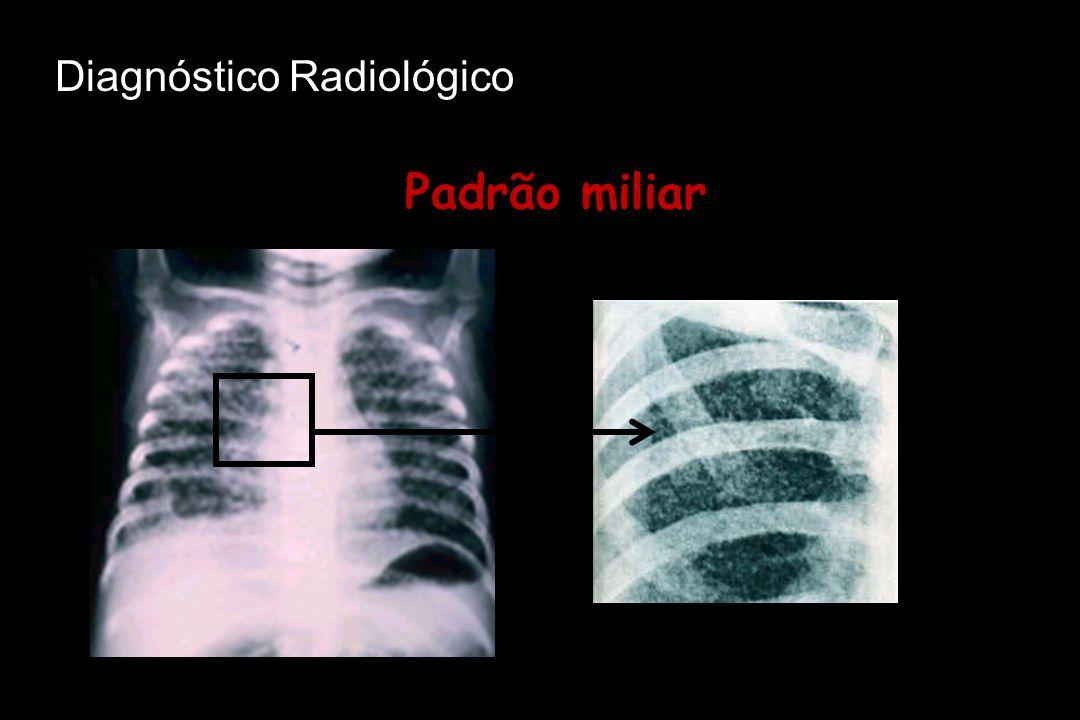Diagnóstico Radiológico