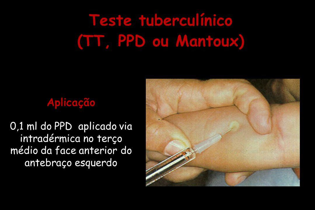 Teste tuberculínico (TT, PPD ou Mantoux)