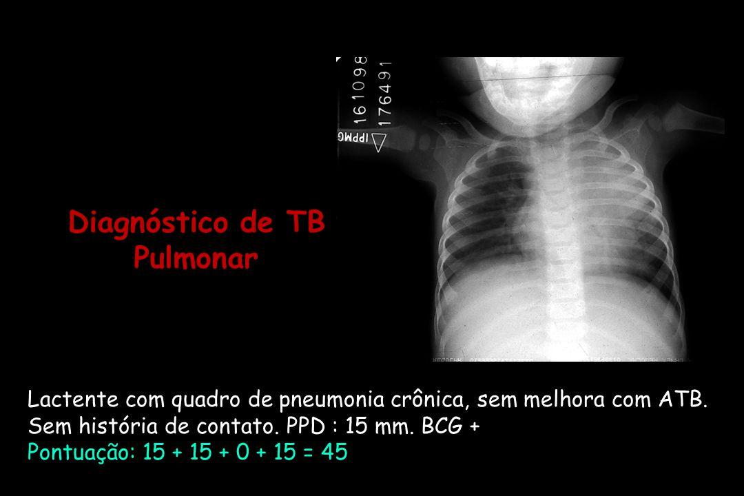 Diagnóstico de TB Pulmonar