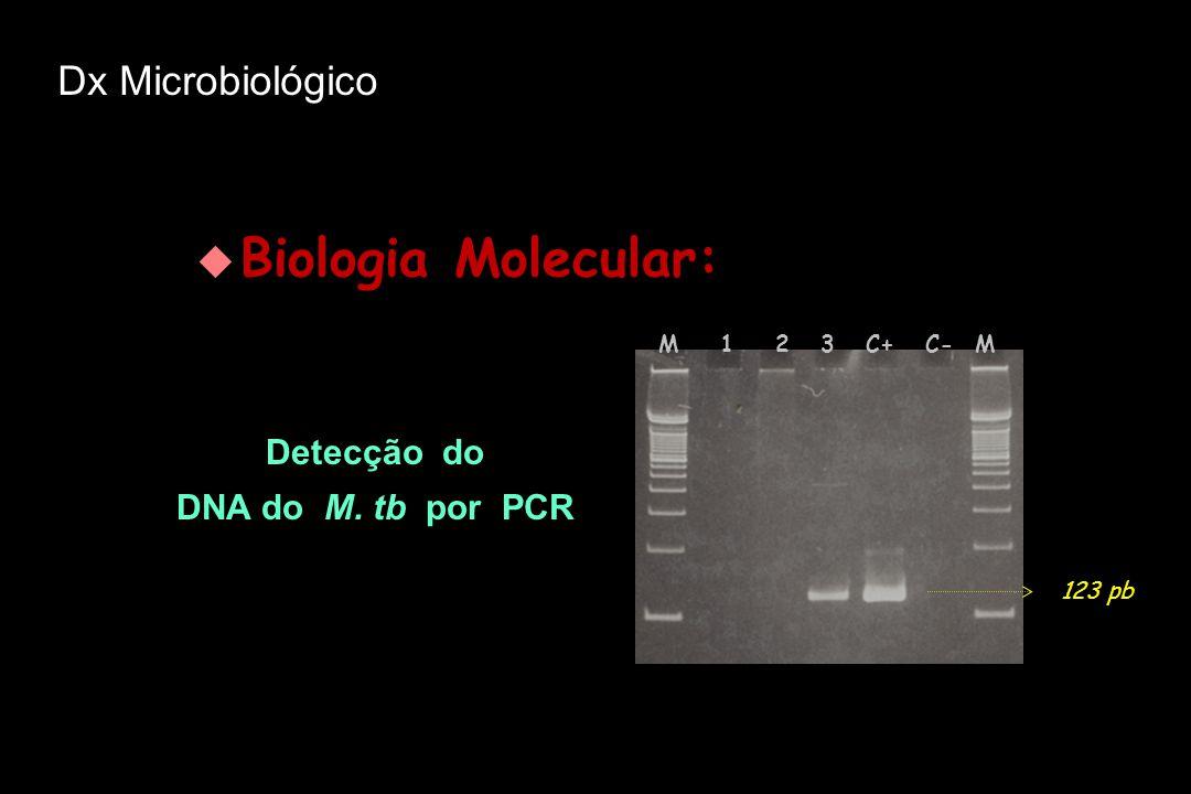 Biologia Molecular: Dx Microbiológico Detecção do DNA do M. tb por PCR