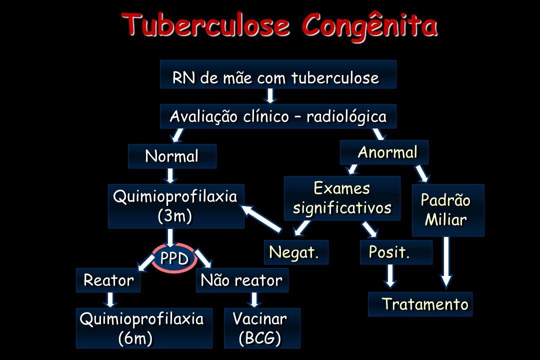 Tuberculose Congênita