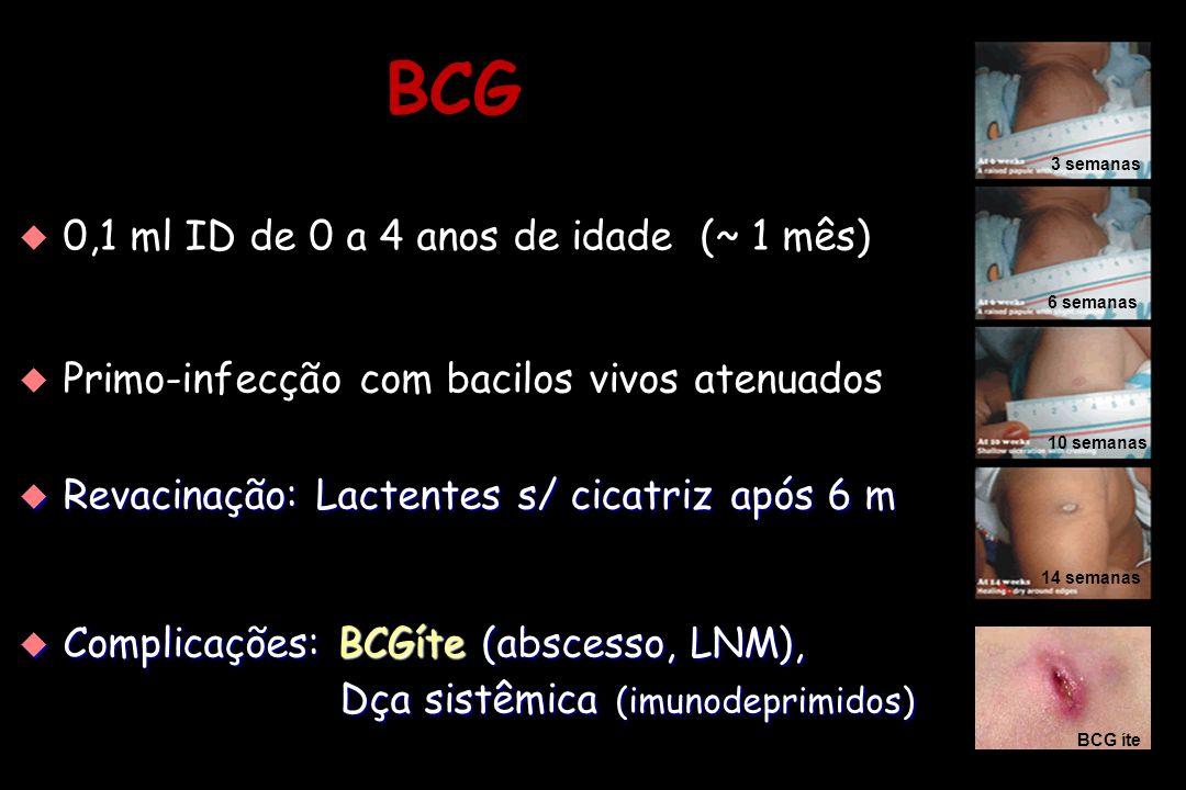 BCG 0,1 ml ID de 0 a 4 anos de idade (~ 1 mês)