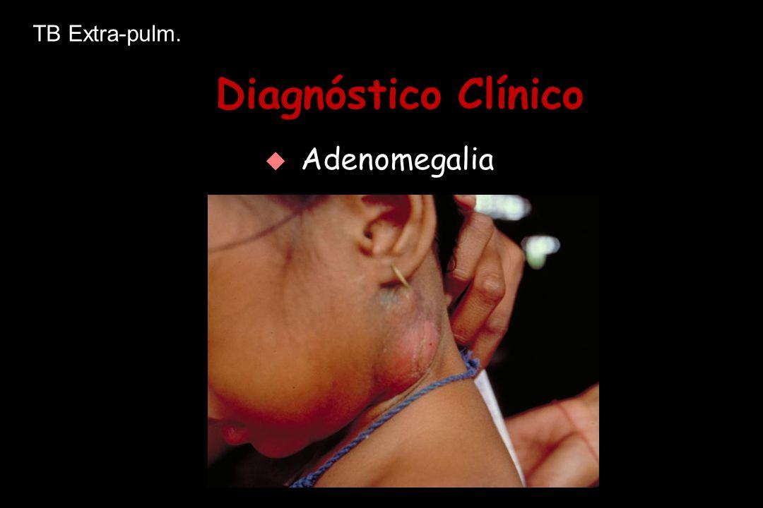 TB Extra-pulm. Diagnóstico Clínico Adenomegalia