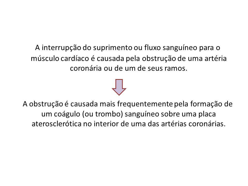 A interrupção do suprimento ou fluxo sanguíneo para o músculo cardíaco é causada pela obstrução de uma artéria coronária ou de um de seus ramos.