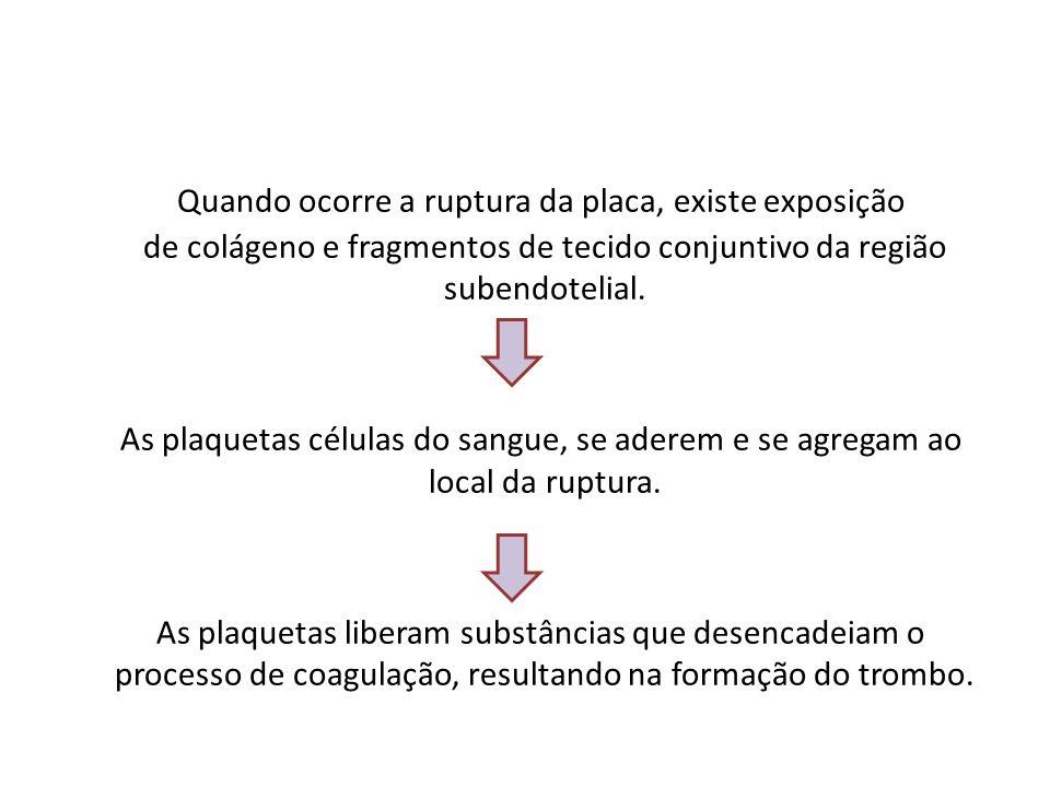 Quando ocorre a ruptura da placa, existe exposição de colágeno e fragmentos de tecido conjuntivo da região subendotelial.