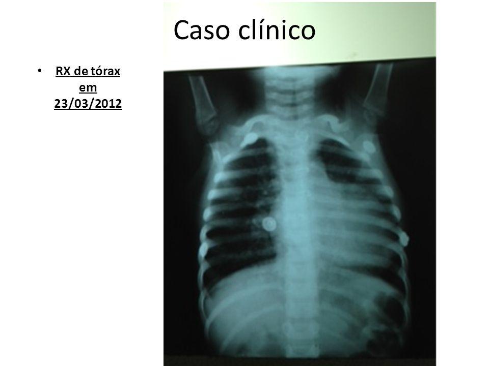 Caso clínico RX de tórax em 23/03/2012