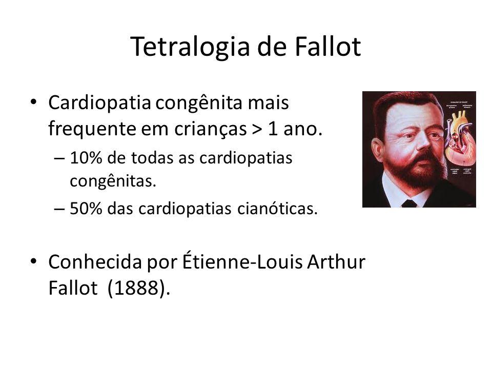 Tetralogia de Fallot Cardiopatia congênita mais frequente em crianças > 1 ano. 10% de todas as cardiopatias congênitas.