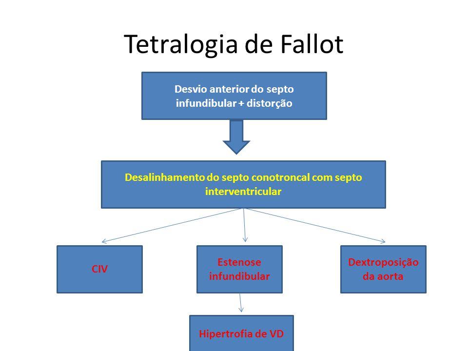 Tetralogia de Fallot Desvio anterior do septo infundibular + distorção