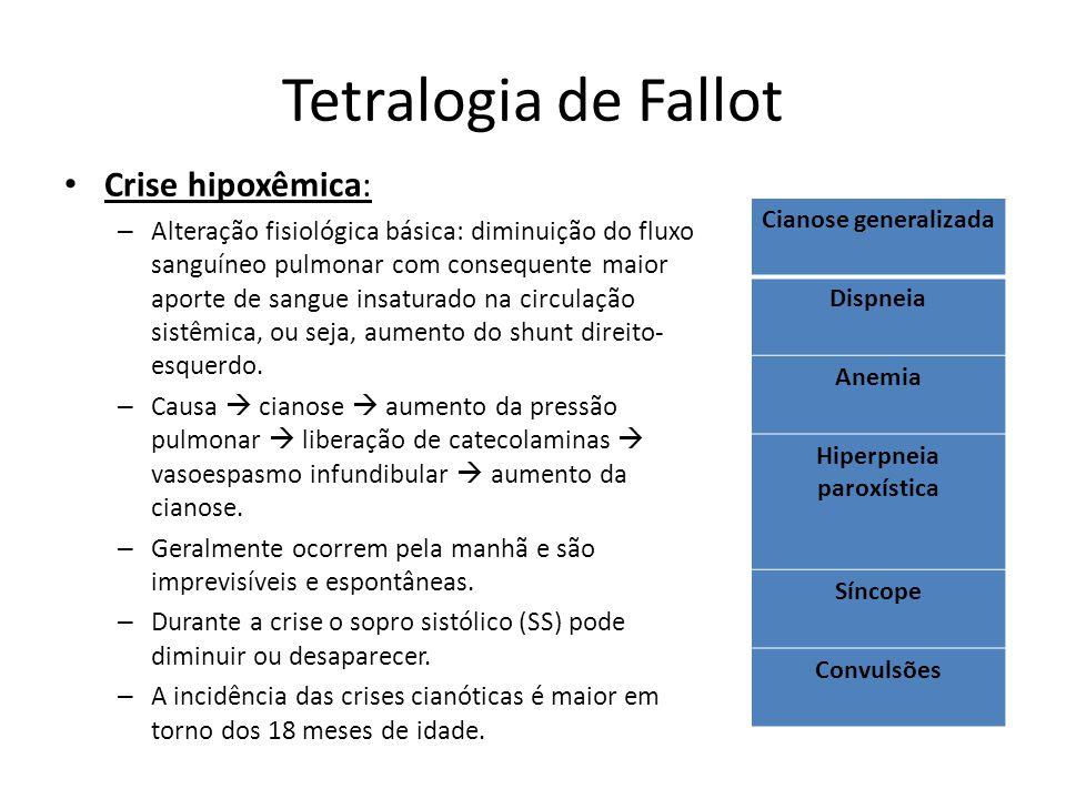 Hiperpneia paroxística