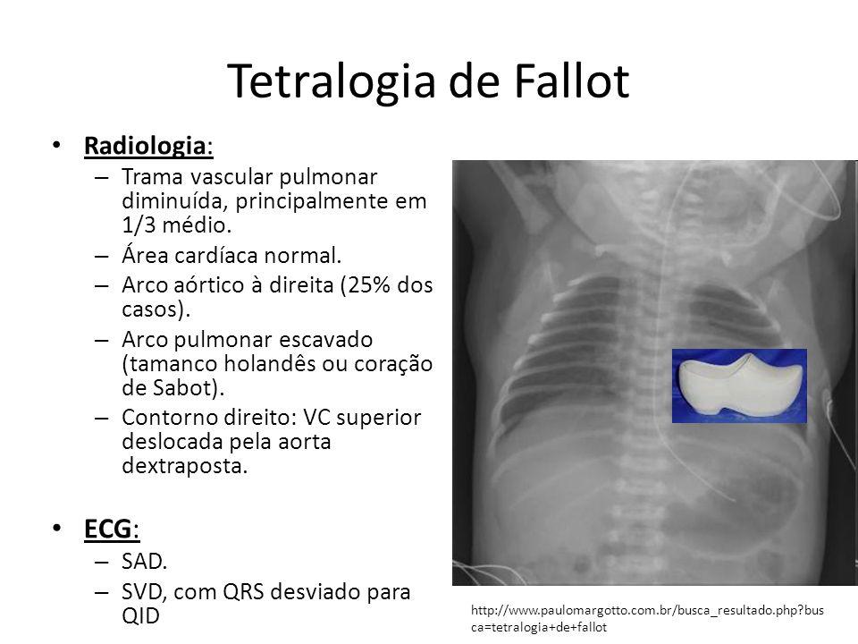 Tetralogia de Fallot ECG: Radiologia: