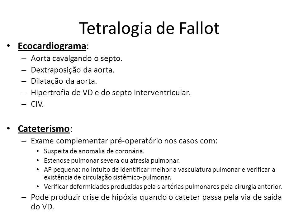 Tetralogia de Fallot Ecocardiograma: Cateterismo: