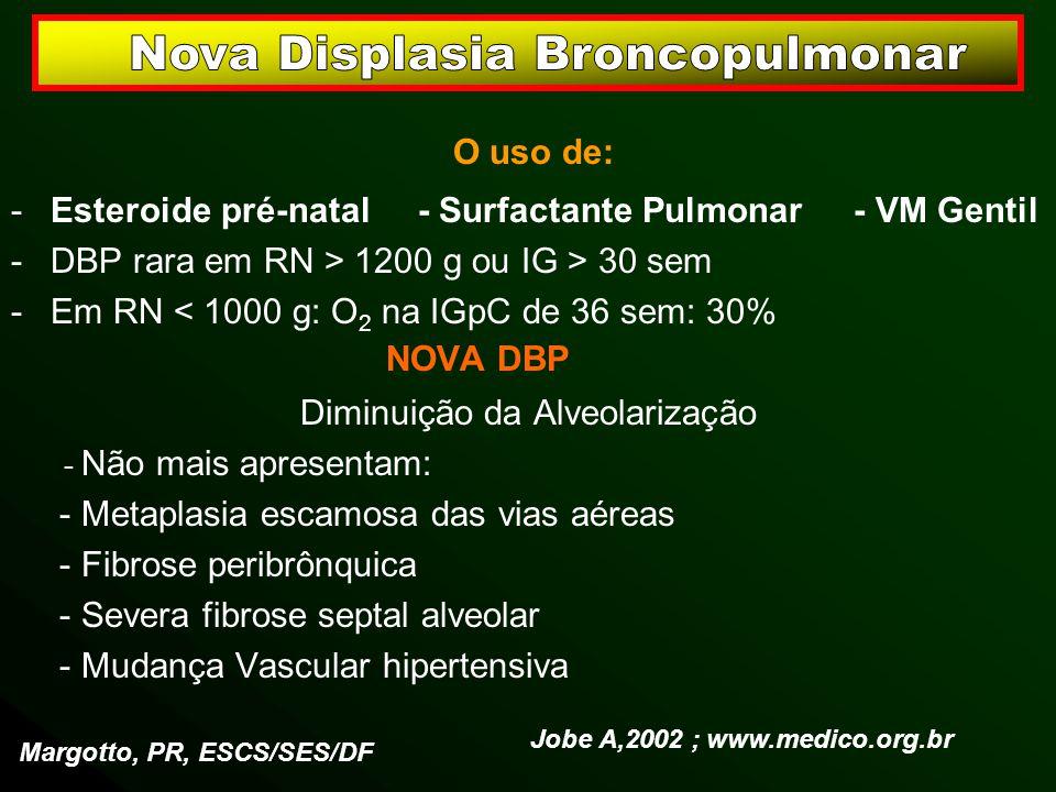Nova Displasia Broncopulmonar
