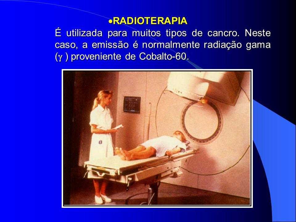 RADIOTERAPIA. É utilizada para muitos tipos de cancro. Neste