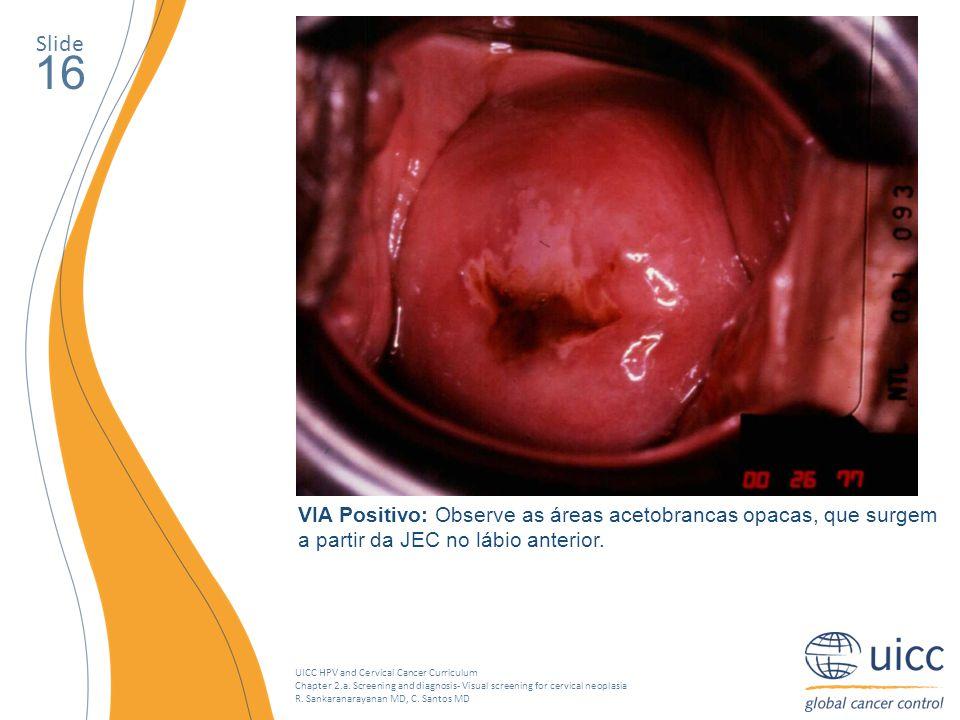 Slide 16. Uma área acetobranco, densa e bem definida está tocando a junção escamo-colunar no lábio superior, próximo ao os. O exame VIA é negativo.