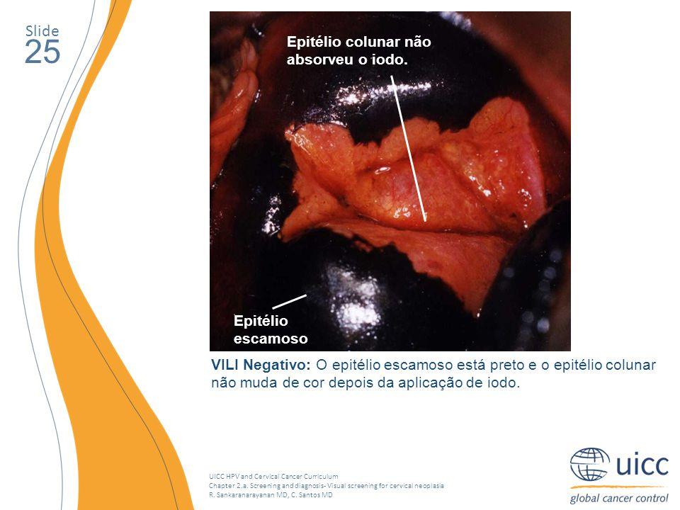 25 Slide Epitélio colunar não absorveu o iodo. Epitélio escamoso